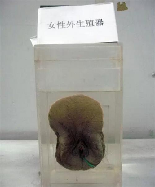 【女人体标本图片】人体活体标本制作过程图