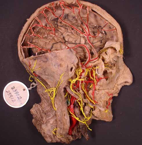 人体标本塑化技术 人体标本新技术:生物塑化技术